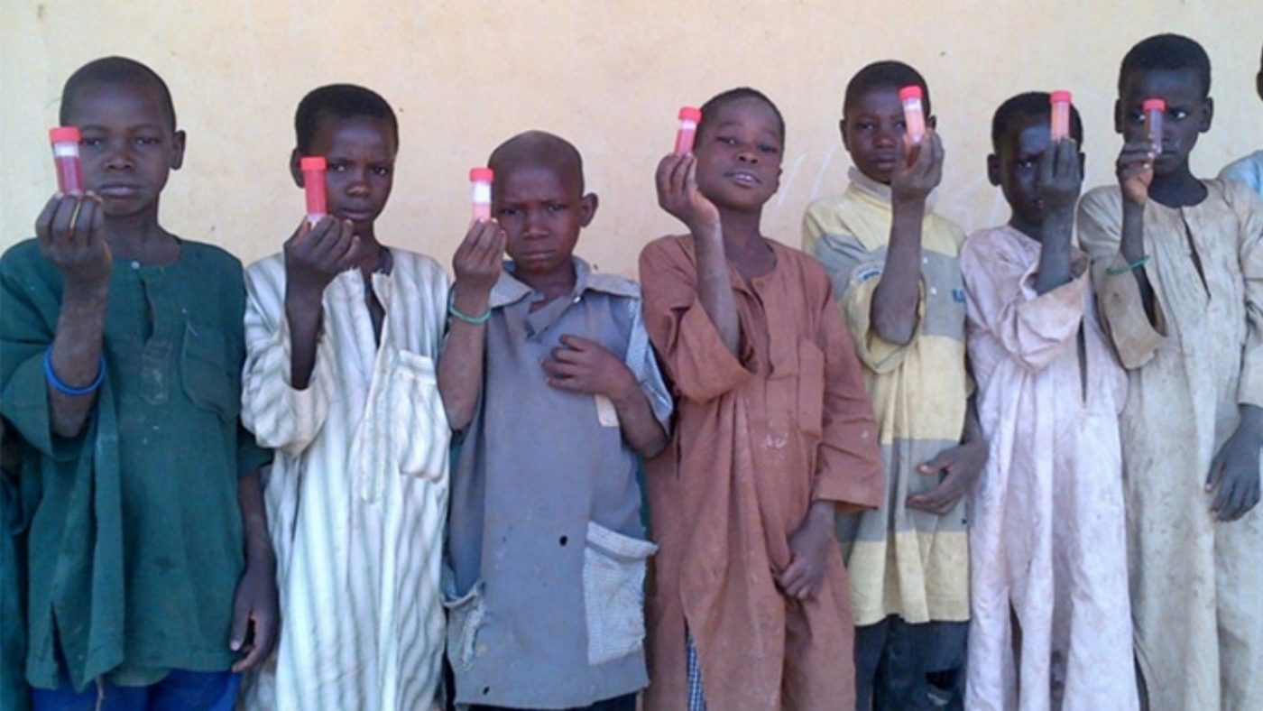 Skolbarn i Ngaski LGA i delstaten Kebbi visar upp urinprov med hematuri (blod i urinen) som är ett symtom på snäckfeber (schistosomiasis) i urinvägarna