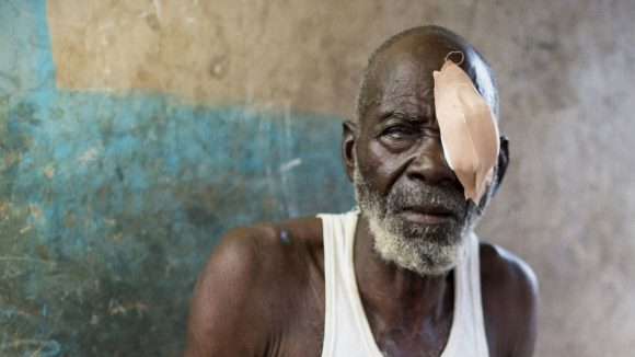 Abdul sits in his house after undergoing eye surgery.