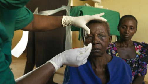 Trichiasispatienten Edisa Nalubanga får bandagen borttagna efter sin operation.