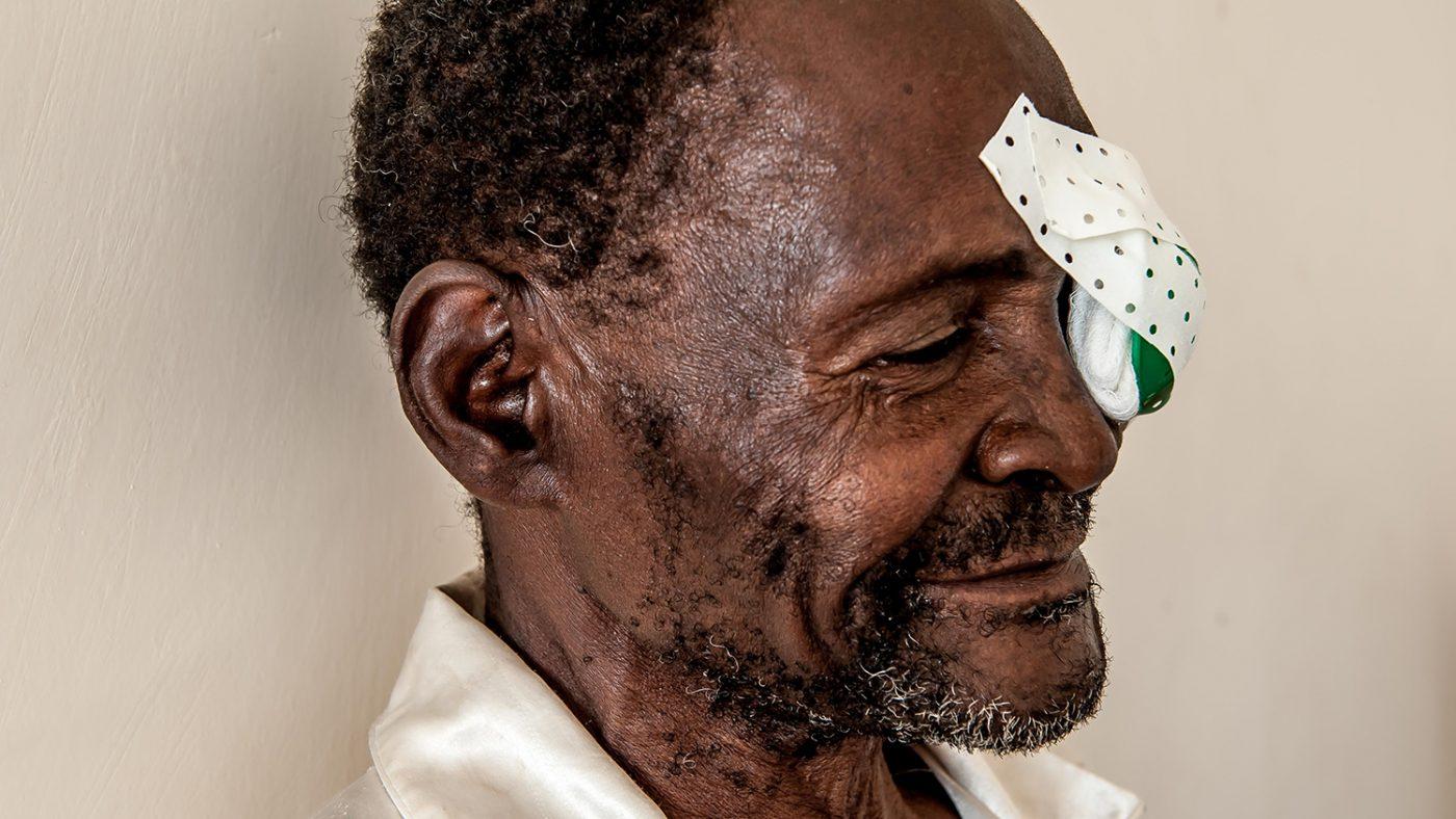 Winesi March med lapp över ena ögat efter gråstarrsoperationen.