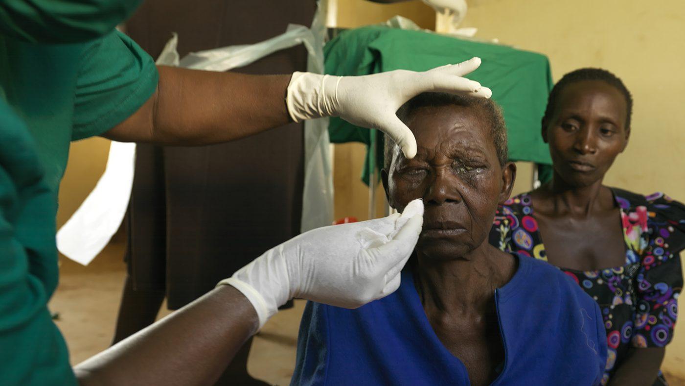 Trichiasispatienten Edisa Nalubanga har fått bandagen borttagna efter sin operation.