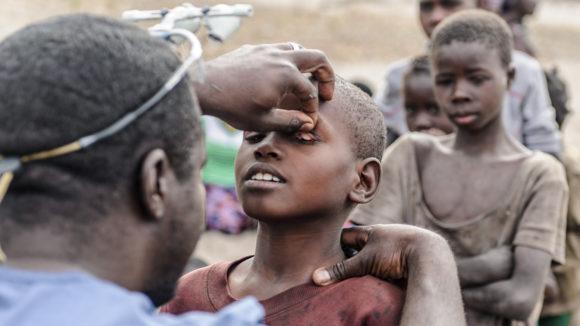 Ögonkirurgen Dr Ndalela undersöker ögonen på ett barn för att leta efter tecken på trakom.