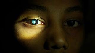 Närbild på en pojkes öga där man ser linsen som har grumlats av grå starr.