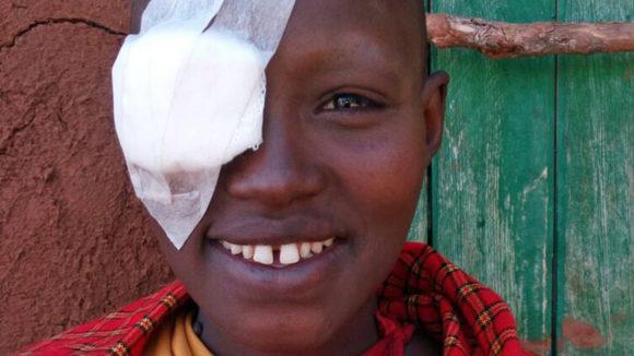 Melua med lapp över ena ögat efter operation.