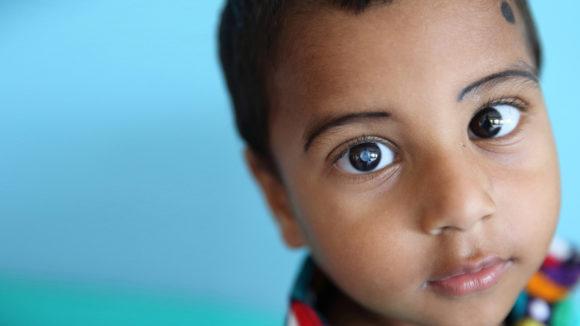 Nadir, treårig patient med grå starr i Fubaria, Bangladesh. Närbild på Nadir, som tittar in i kameran med synbar grå starr.