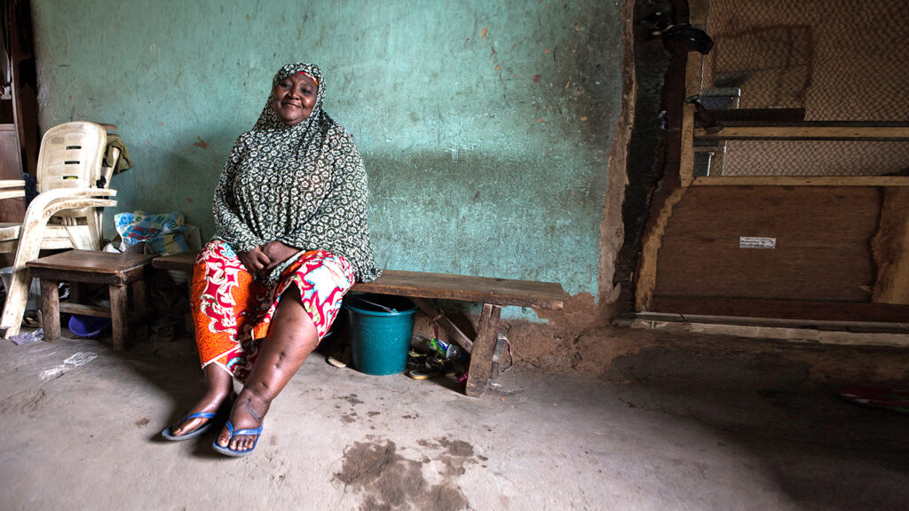 Hassana Dadi Ibrahim is 65 years and has lymphatic filariasis. She stays with her family in Lokoja, Nigeria